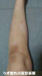 1 2018_08_23 膝から下の内出血写真.jpg